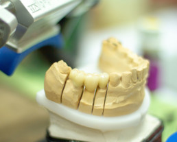 photo of tooth replacement